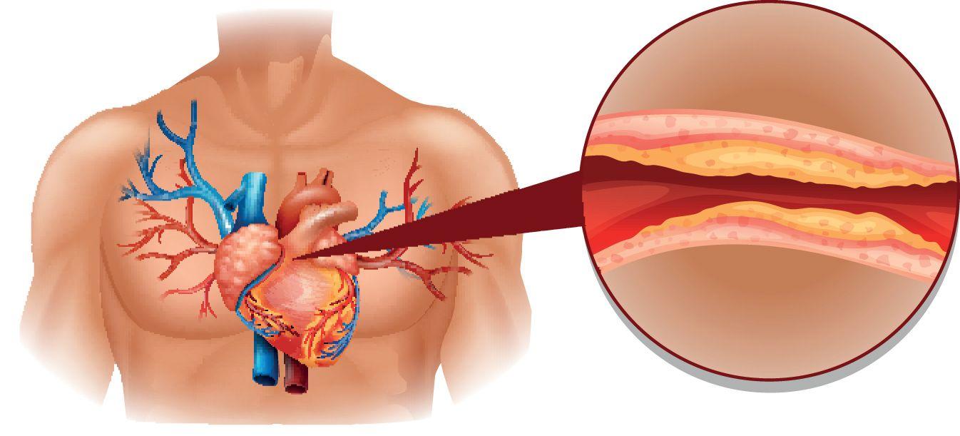 Ako znížiť cholesterol? - Karnozín EXTRA